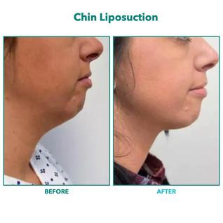 Chin Liposuction.006.jpeg