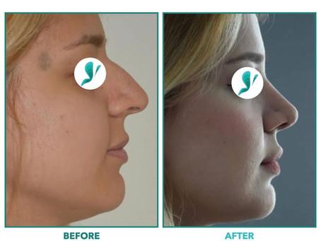 Cosmetic Procedures in Turkey