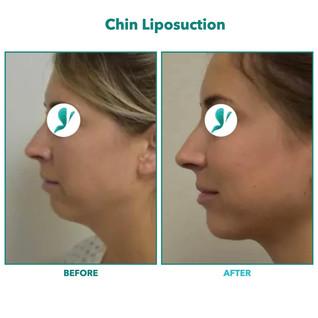 Chin Liposuction.004.jpeg