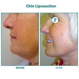 Chin Liposuction.001.jpeg