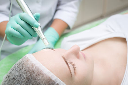 Beautician makes microneedling young gir