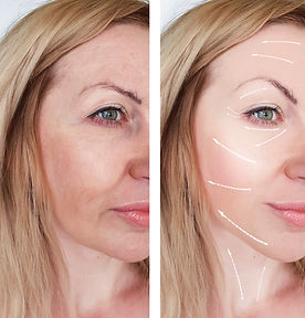 woman wrinkles face before and after pro