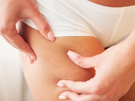 Cellulite: What It Is and How to Minimize It