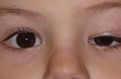 Oculoplastic eye surgery.jpg