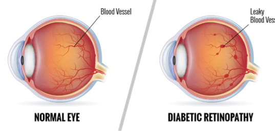 Diabetic-Retinopathy.png