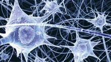 C.T.I.: Neuroplasticità e  Shiatsu