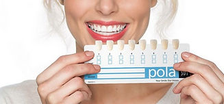 teeth-whitening-Vancouver-cost_edited.jp