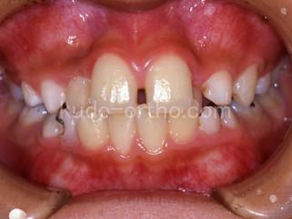 28話 歯の凸凹は予防できるのか。