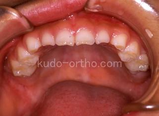 乳歯列期の反対咬合が観察でよい理由
