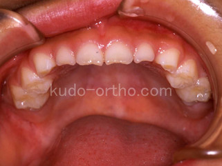 67話 乳歯列期の反対咬合が観察でよい理由