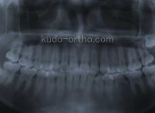 乳歯を咬合に参加させた症例