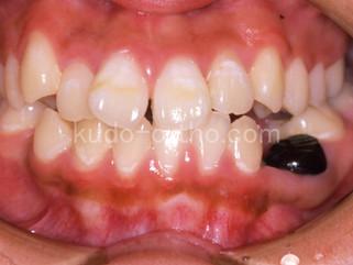 25話 乳歯の晩期残存