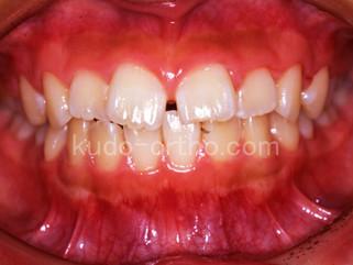 16話 歯を抜かずに治療できる例