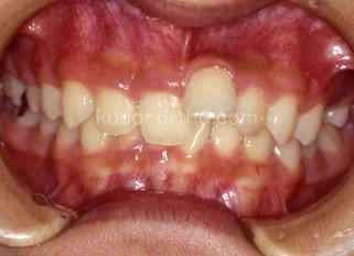 歯科医師選び