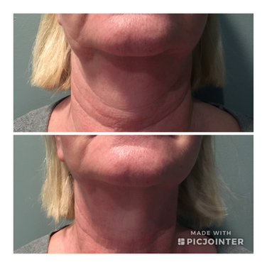 ReFirme Skin Tightening for jowling & loose skin of the face & neck.