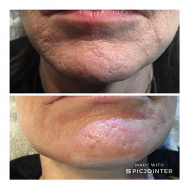 Before & After MicroNeedling
