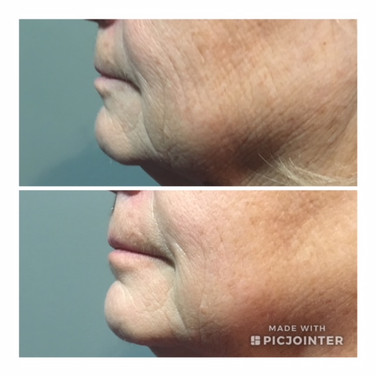 Before & After ReFirme Skin Tightening