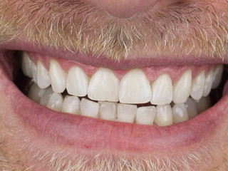 Whitening 3 - After