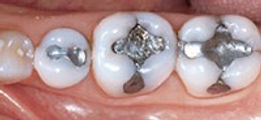 Allure DDS, White Fillings, Greenwich Village NYC