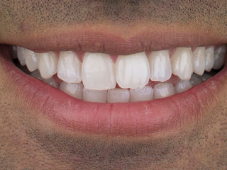 Whitening 2 - After