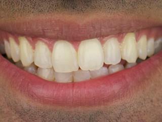 Whitening 2 - Before