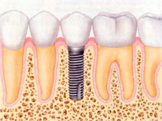 Allure Dental Specialists, Allure DDS, dental implants nyc, prosthodontist Greenwich Village, prosthodontist West Village, dentist NYC, Dentist NY 10003, 10014, 10013, 10012, 10011