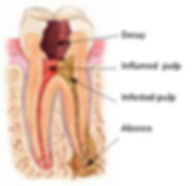 Allure DDS, Root Canals, Greenwich Village, New York City, NY 10003