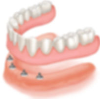 Allure DDS, Dentures, Greenwich Village, New York City, NY 10003