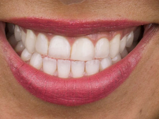 Whitening 1 - After
