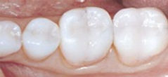 Allure DDS, White Fillings, Greenwich Village, New York City, NY 10003