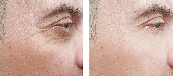 male eyes wrinkles   after treatment.jpg