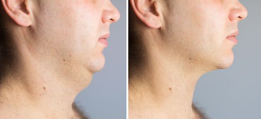 Man before and after double chin fat cor