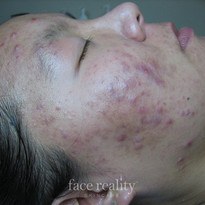 Before Acne Treatments