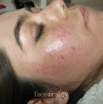 After Face Reality Treatments