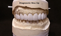 diagnostic wax up.png