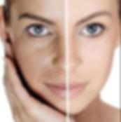 skin-laser-image-298x300.jpg