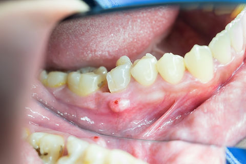 dental decayed tooth with gum infection.