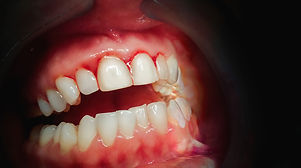 Mouth with bleeding gums on a dark backg