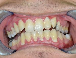 massive bacterial plaque on teeth, gingi