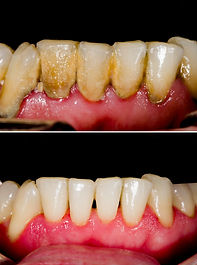 Before and after dental tartar removal -