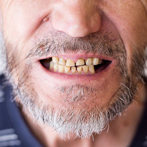abrasion of teeth in an elderly man.jpg