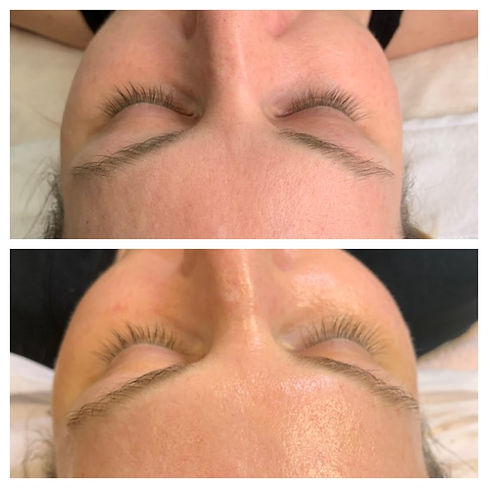 GREEN PEEL Client before and after Fresh Up treatment.jpg