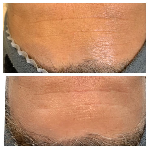 GREEN PEEL Client before and after Fresh Up treatment_FOREHEAD.jpg
