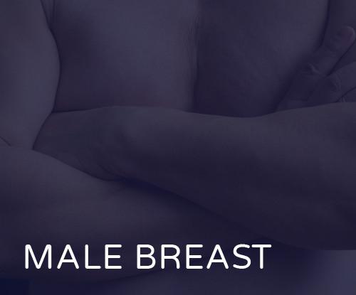 BREAT-MALE.jpg