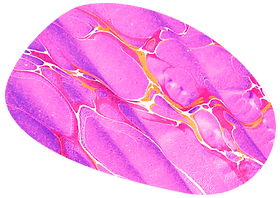 a blob that is bright pink with purple, red, orange and white marbling