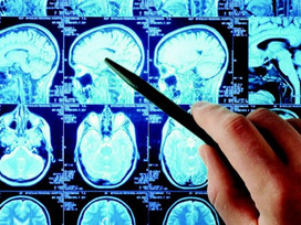 État modifié de conscience, hypnose & neurosciences, par Thierry Gallopin