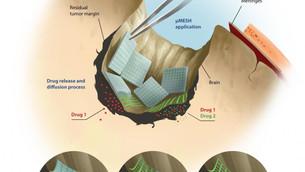 MicroMesh: a microscopic polymeric network to attack glioblastoma multiforme