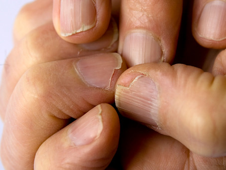 Brittle Nails: Causes, Treatment, And Nutrition