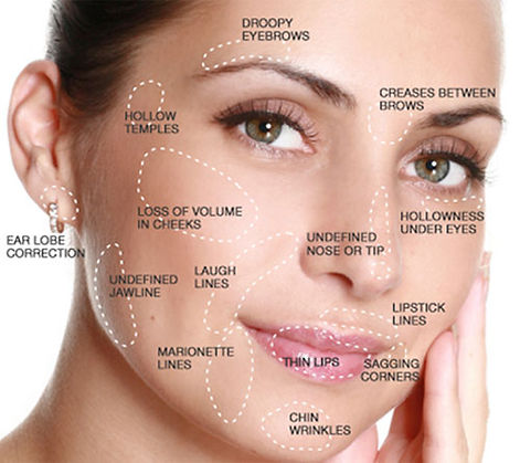 Parts of the face that can be modified
