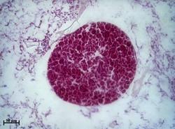 Embrião de Desmapsamma